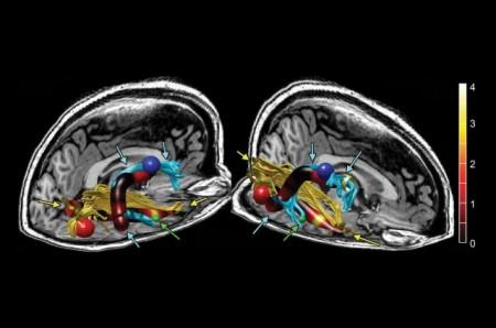 cfs brain